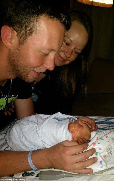 Ребенок, не имеющий большей части черепа, недавно отпраздновал первый день рождения