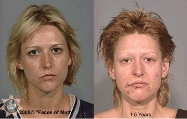 Как исправить лицо после алкоголизма