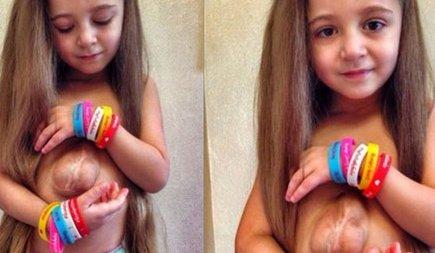 Девочка родилась с сердцем наружу