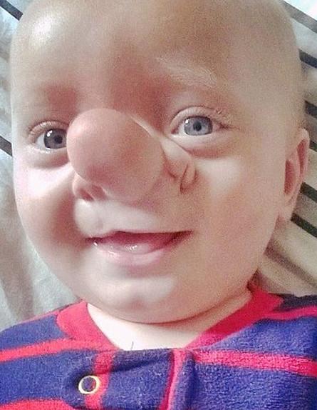 """""""Реальный Пиноккио"""" – мальчик с частью мозга в огромном носу"""
