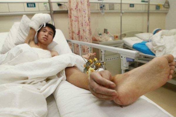 Китайцу спасли отрезанную руку, пришив ее к ноге