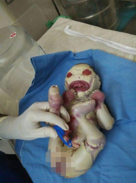 В Индии родилась девочка, на которой почти нет кожи