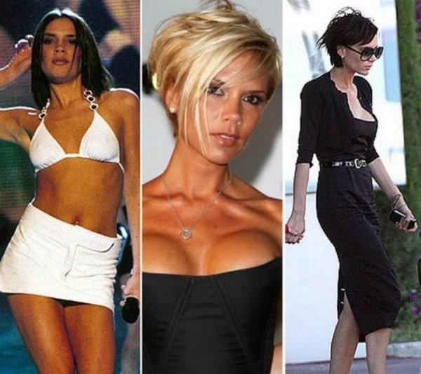 10 знаменитостей с самой дорогой искусственной грудью