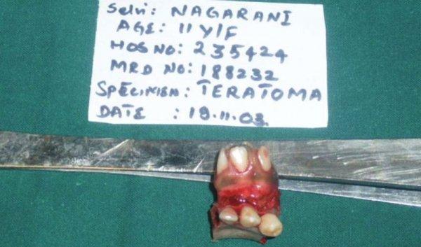 Операция по удалению лишнего рта у индийской девочки