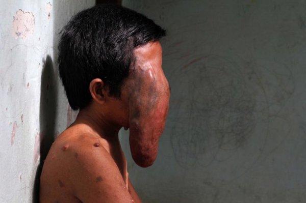 Индонезиец страдает от постоянно растущей опухоли на месте глаза