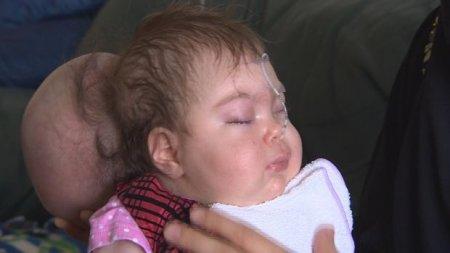 Врачи спасли младенца беженки, родившегося с мозгом вне черепа