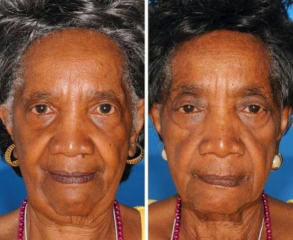 Лица близнецов, один из которых курит, а другой – нет