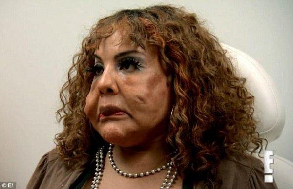 Транссексуалу из США поправили лицо