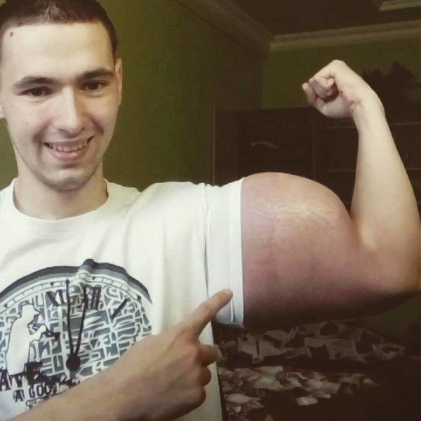 Тело, за которое можно умереть: человек-синтол Кирилл Терешин
