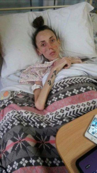 Девушка весила 25 кг и чуть было не умерла. Сегодня она выглядит вполне здоровой