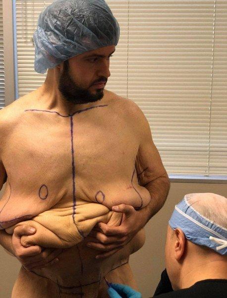 С похудевшего на 136 кг мужика срезали столько лишней кожи, что ее бы хватило на 8 курток (Не для слабонервных)