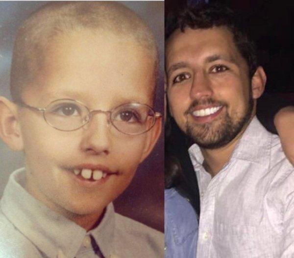 До и после: в подростковом возрасте и спустя несколько лет