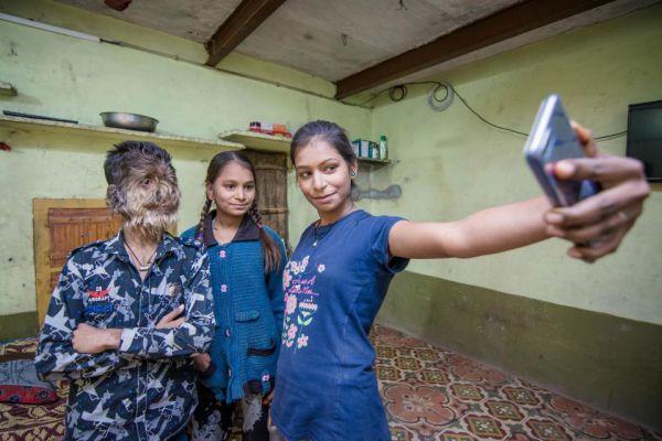 Индийский оборотень, лицо 13-летнего мальчика покрыто волосами
