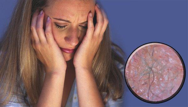 25 самых странных болезней мира, которые ученые до сих пор не могут объяснить